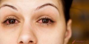 Göz-Kanlanmasının-Nedenleri-ve-Tedavisi-758x380